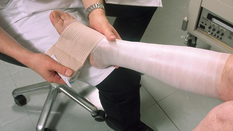 hogyan lehet bekötözni a lábat visszér video