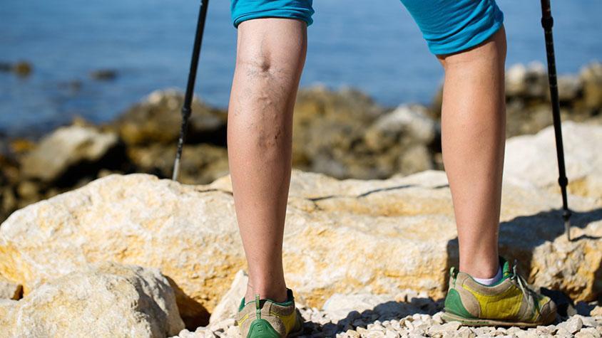 hogyan kell helyesen bekenni a lábát visszérrel vitaminok a visszeres vénák listáján