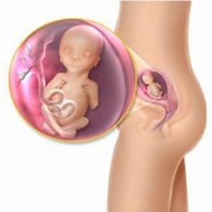 visszerek a terhesség ötödik hónapjában