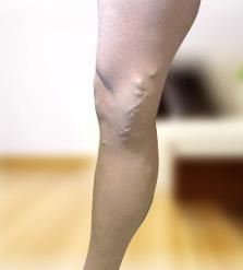 visszér a lábakon mennyibe kerül a műtét