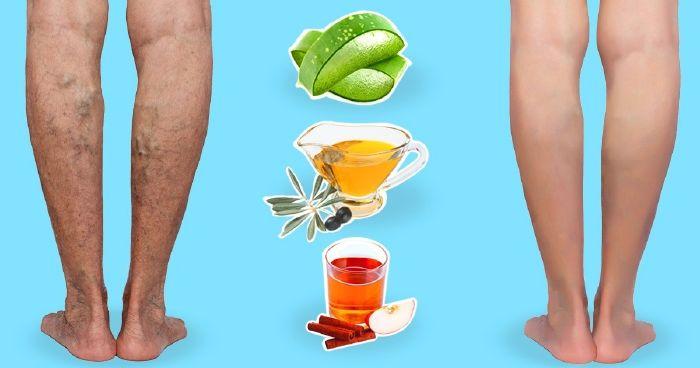 a lábakon lévő visszéreket népi gyógymódokkal kezeljük