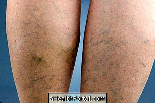 a lábon lévő varikózis növekszik