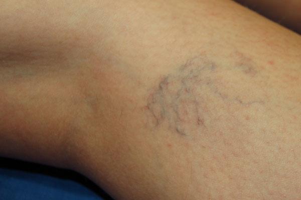 visszerek a lábakon a műtét után phlebodia visszér ár