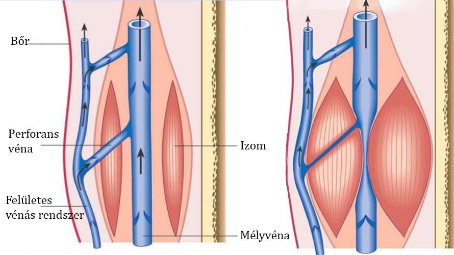 A varicositás mindig kialakul-e tromboflebitiszként?