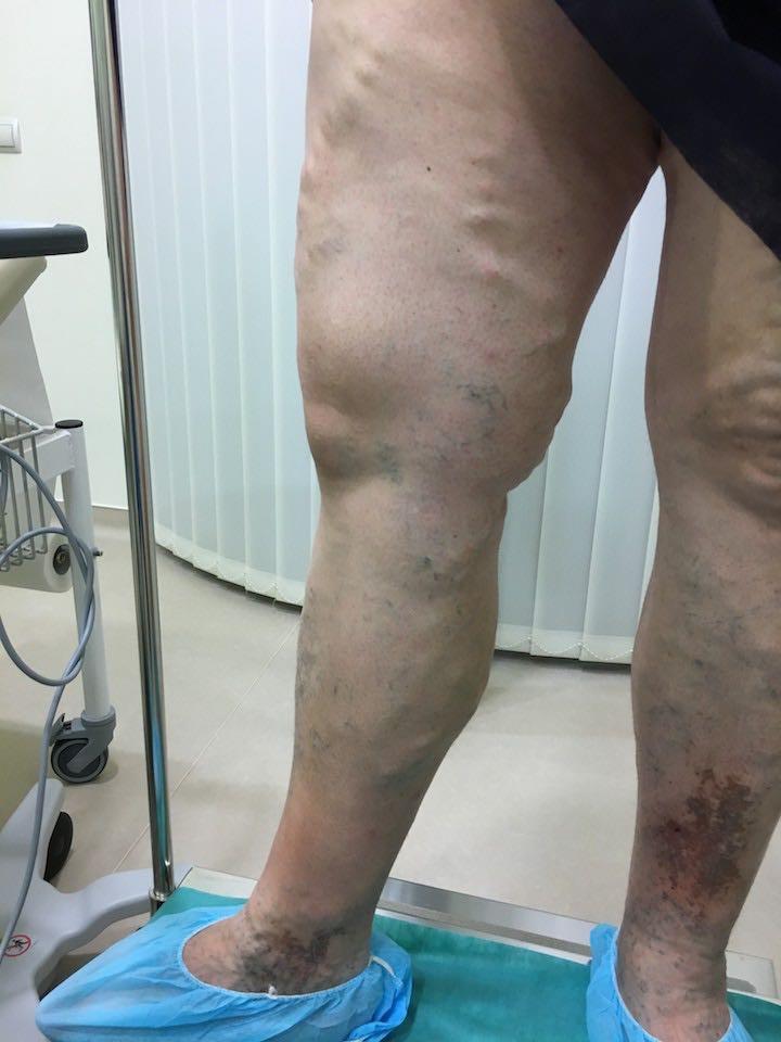visszér a katéter után annál jobb a visszeres lábakat kezelni