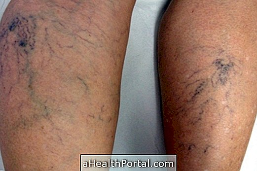 gyakorlatok a varikózis kezelésére a lábakon