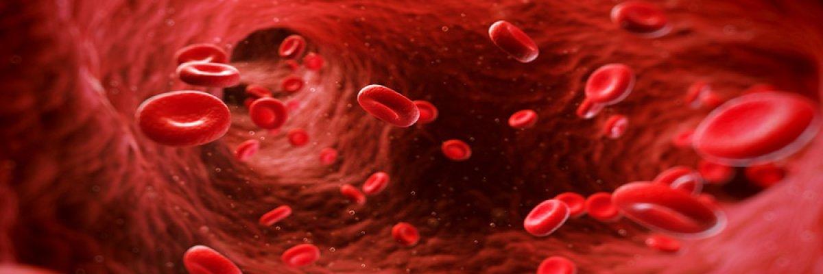 Scleroterápia: áttekintések és következmények. Az alsó végtag vénái scleroterápiája