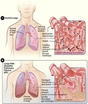 a varikózis és a thrombophlebitis hatékony gyógymódjai lehetséges-e a varikózisos erek tisztítása