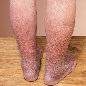 vérrög visszér a láb tünetein