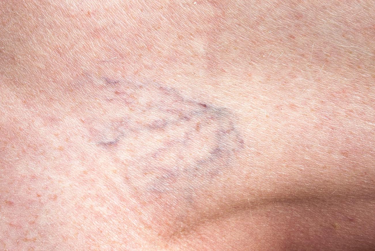kezelje a lábfájást visszérrel ultrahang a visszér ellenében fizetett
