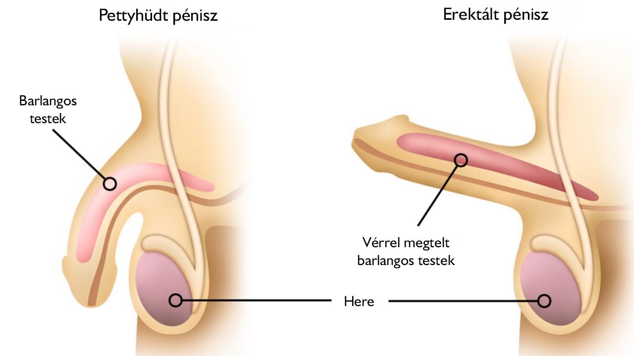 férfiaknál a kismedence tüneteinek visszér visszér és vákuum trénerek