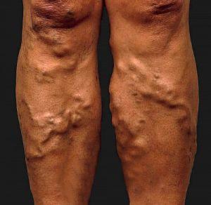 visszér a lábakon pokoli fájdalom