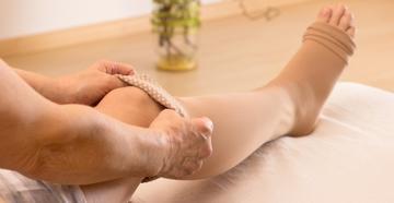 Visszérbetegség: Mi az a szkleroterápia?