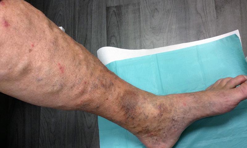pontok a lábakon, visszér fotó