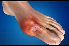 visszér és besorozó a lábszár visszérének kezelése