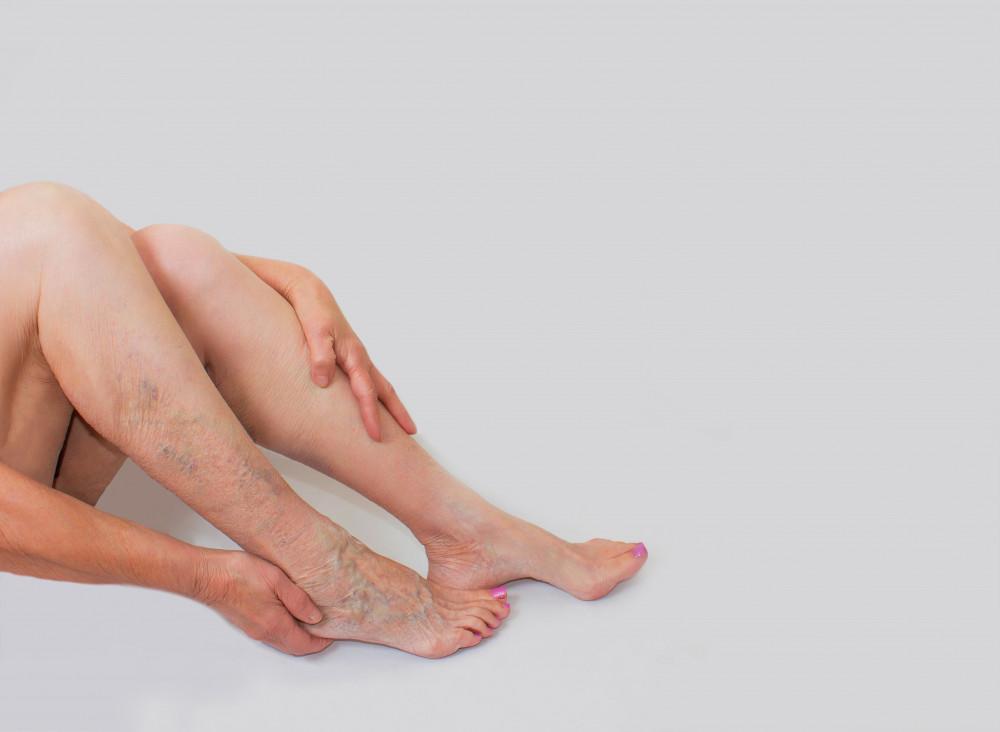 visszér kialakulása a lábakon