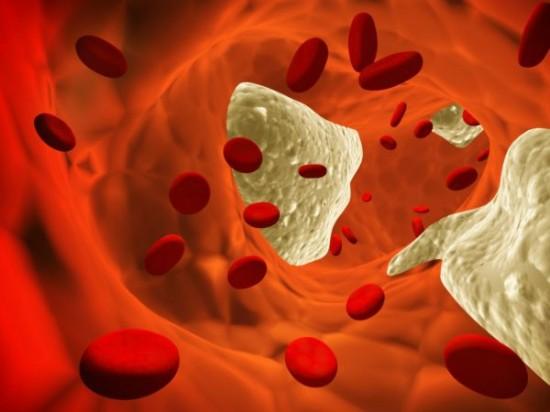 visszér népi gyógymódok a visszér phlebológiája