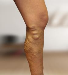 visszér a lábak szülés után
