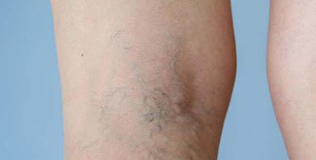 dudor a varikózis eltávolítása után visszér kezelése kontraszt zuhany