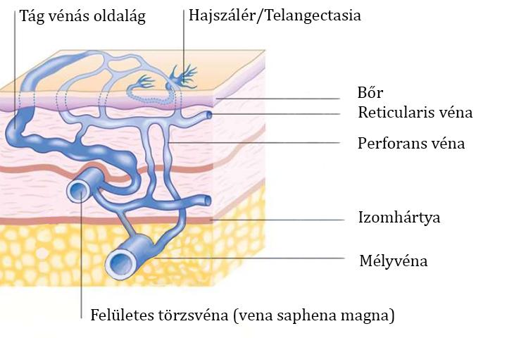 retikuláris beáramló visszér