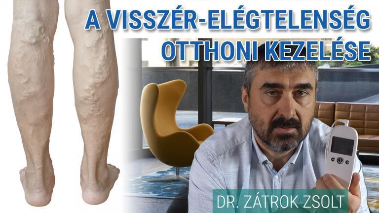 a visszér eltávolítása lipetsk hogy egy pióca hogyan kezeli a visszerek a lábakon