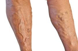visszérbetegség nehézség a lábakon kezelés