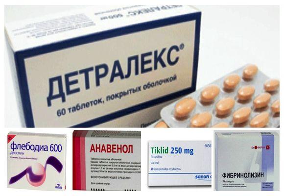 visszérgyulladásos gyógyszerek mely tabletták jobban segítenek a visszér ellen