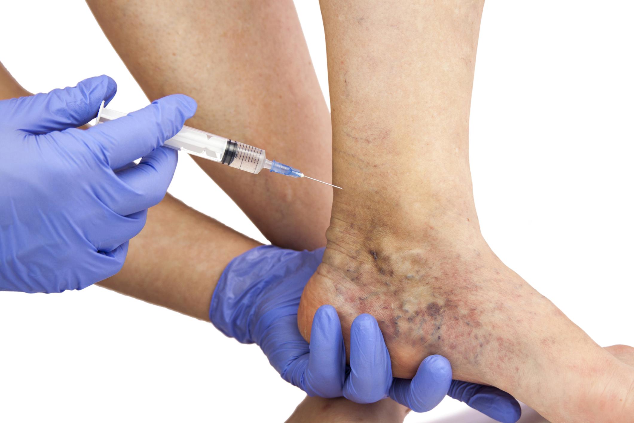 phlebodia tabletták visszér ellen a második szakasz visszérének kezelése