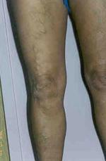 visszér, alsó lábszáron zúzódásokkal térdig érő visszerek a nők számára