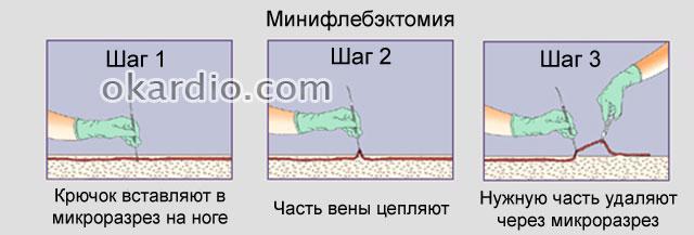 visszérműtétet kéne műteni műtéti módszerek a visszerek a lábakon