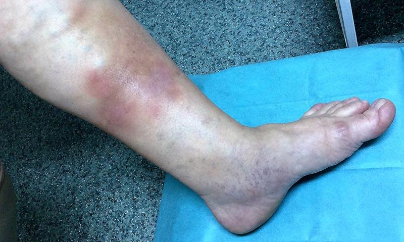 bordó foltok a lábakon visszérrel