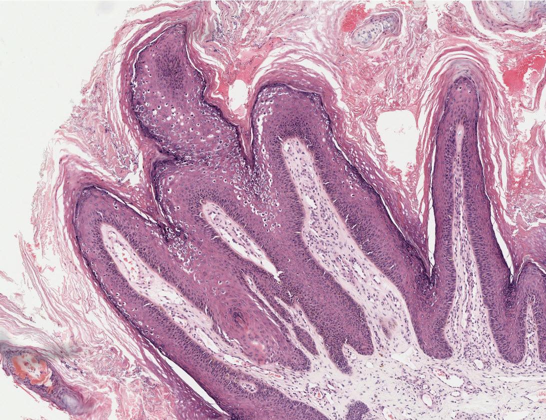 Hogyan lehet gyógyítani az anginát - Magas vérnyomás September