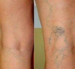 ne provokálja a visszér a lábak hardveres nyirokelvezetése a visszér ellen