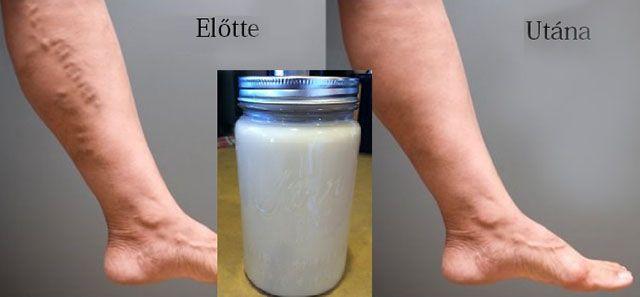 az egyik láb visszérrel szárad a lábak visszérfeleslege túlsúlyos