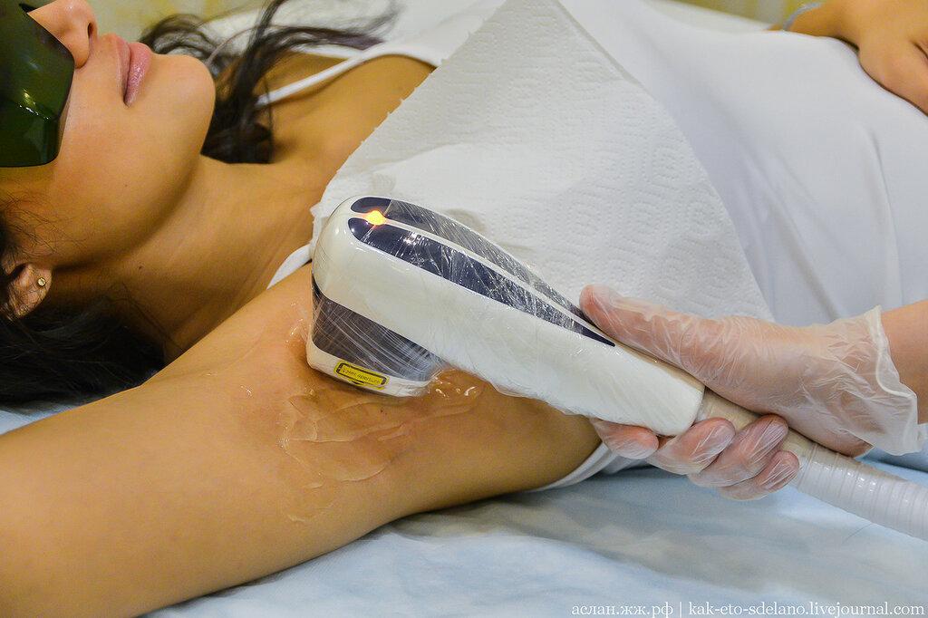Milyen különbségek vannak a depilátor és az epilátor között? - Típusok September