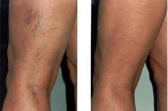 a lábszárcsont nem fáj varikózis Venitan visszérről vélemények