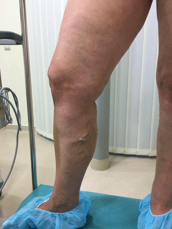 Hogyan kezelhető a visszeres láb?
