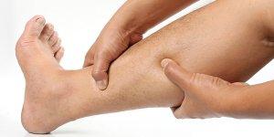 a lábakon végzett visszérműtét után