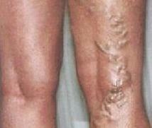 thrombophlebitis visszeres műtét után