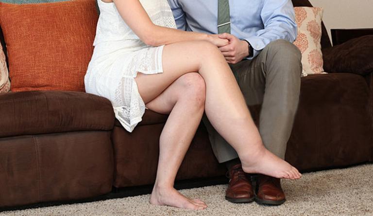 a láb erősen megduzzad a visszérben