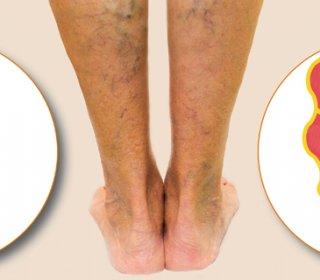 visszér a térd alatti lábon