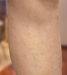 sürgősségi lábműtét visszér visszerekkel csökkenti a lábakat, mint kezelni