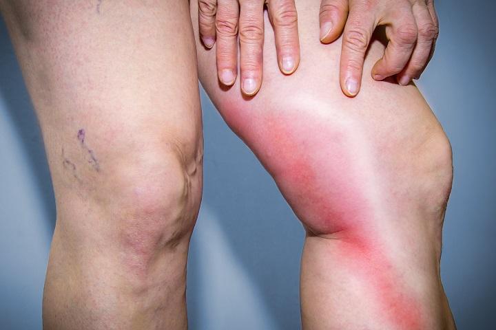 a bőr gyulladása visszerek gyönyörű lábak visszér