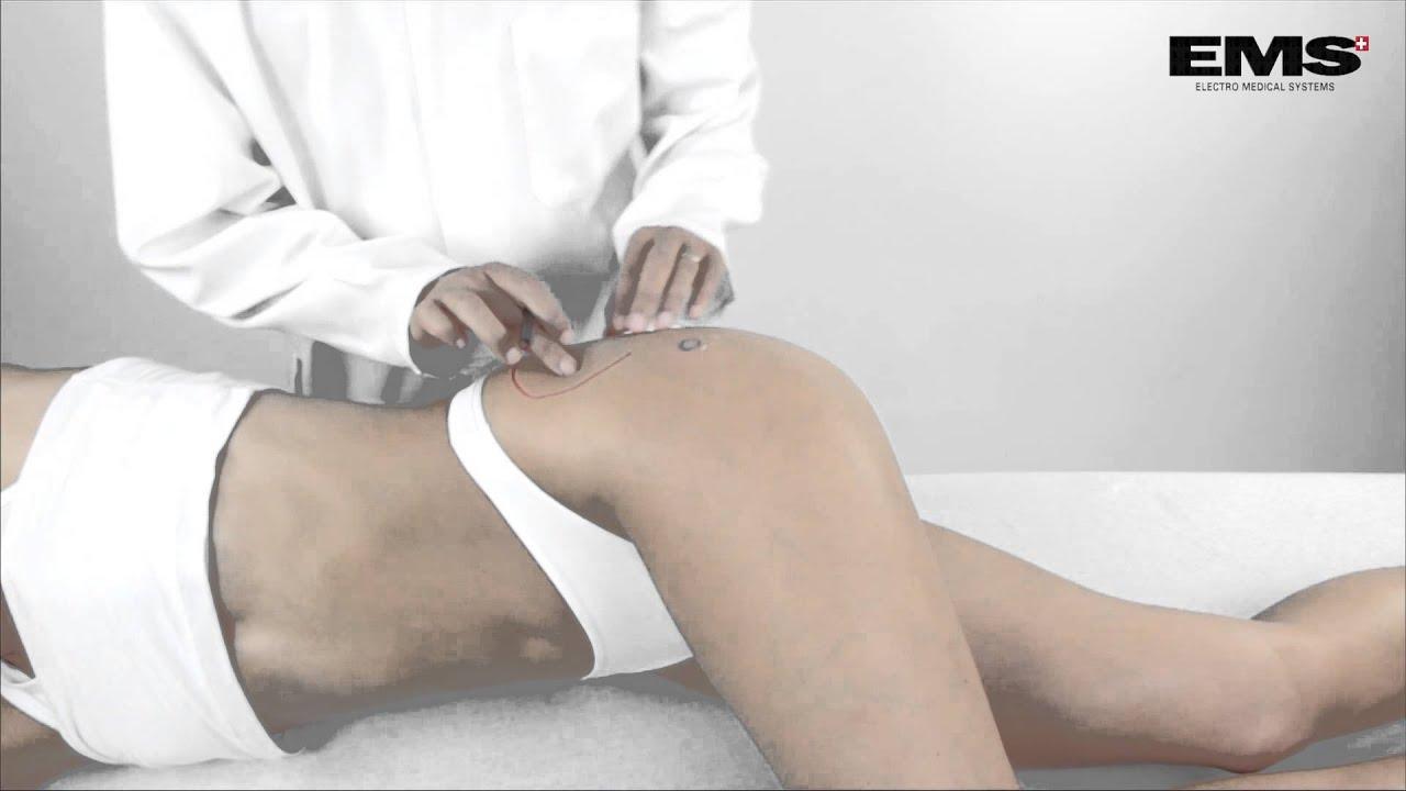 hogyan kell kezelni a csípő visszérét