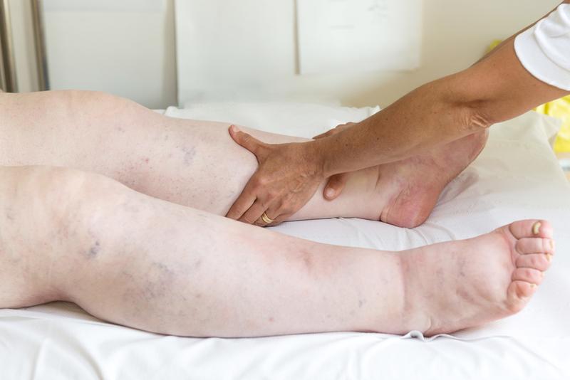 a bal láb duzzanata visszeres