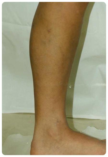 a visszeres műtét után duzzadt láb