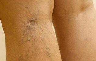 visszerek kezelése a lábakon népi gyógymódokkal