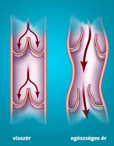 A leghatékonyabb gyógyszer (kenőcsök, krémek, gélek) a lábak varikozása esetén