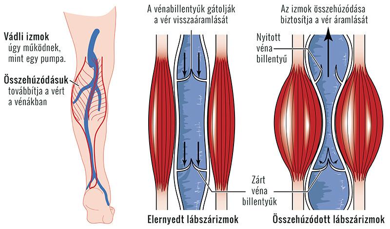 visszérgyengeség a lábakban