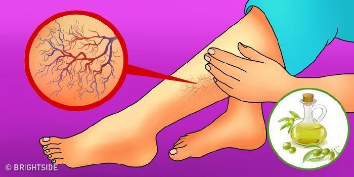 a visszerek terhesség alatti gyógymódjai